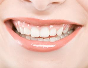 Teeth Survey Shows Dental Help Needed