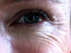 Wrinkles make us sad, depressed - survey